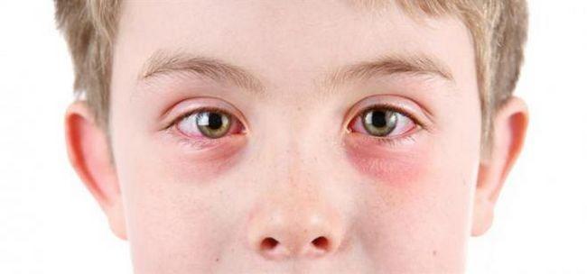 Алергічний кон`юнктивіт: класифікація та причини хвороби, симптоматика, діагностика і лікування
