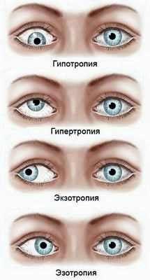 Гімнастика для очей при катаракті у дітей