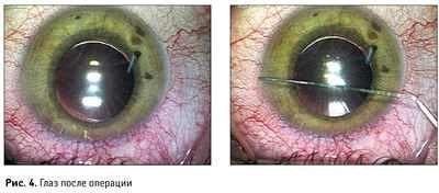 Око після операції катаракти червоний