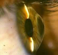 Очі з кератоконусом, на відміну від здорових, характеризуються більшою асиметрією параметрів рогівки