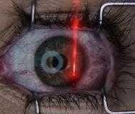 Дослідження: немає необхідності в протизапальних препаратах після лазерної хірургії глаукоми