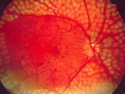 Дослідження: роль імунітету в лікуванні ретинопатії