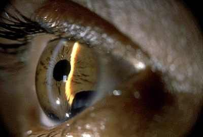 Екстракапсулярна екстракція катаракти опис
