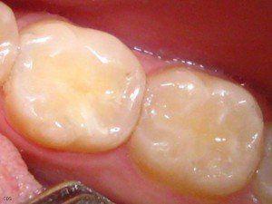 Як позбутися від зубного болю народними засобами швидко і ефективно