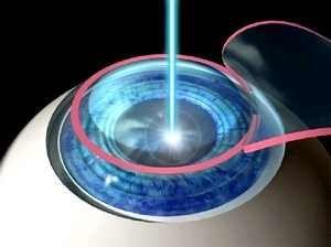 Як лікувати катаракту очі лазером