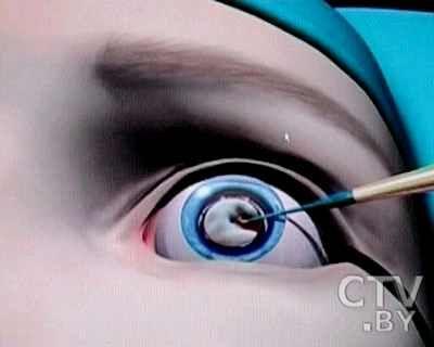 Нові способи лікування катаракти