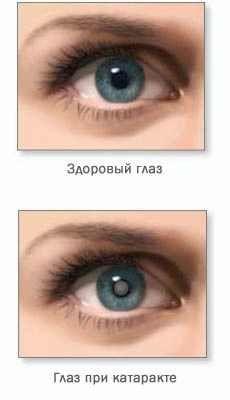 Чому з`являється катаракта ока