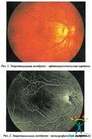 Препарати, які використовуються в ході хірургічних офтальмологічних втручань