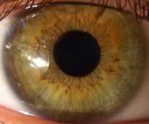 Причина хвороб очей