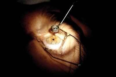 Скільки триває реабілітація після катаракти
