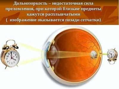 Сучасні методи лікування катаракти